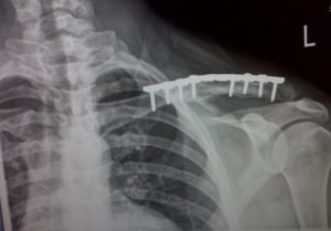 Clavicle Fractures: Non-op or Surgery?
