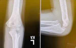 System for Reading Pediatric Elbow Xrays