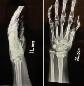 Case: Distal Radius Fracture