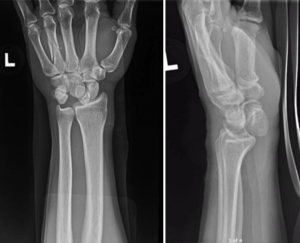 Distal Radius Case: Vet Fell Off His Bike