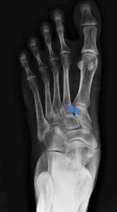 Systematic Way to Read Foot Xrays