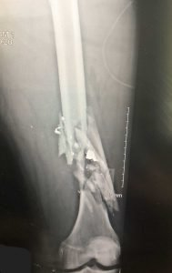 Gunshot Wound to Thigh