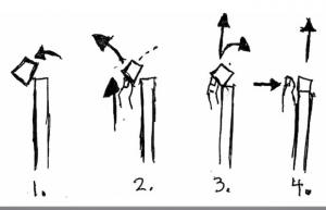 Distal Radius Reduction Technique